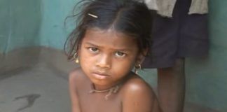 Stunning Malnutrition in Orissa Statistics and Facts
