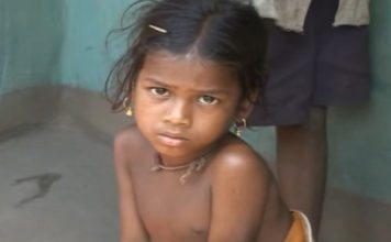Stunning Malnutrition in Orissa Statistics and Facts
